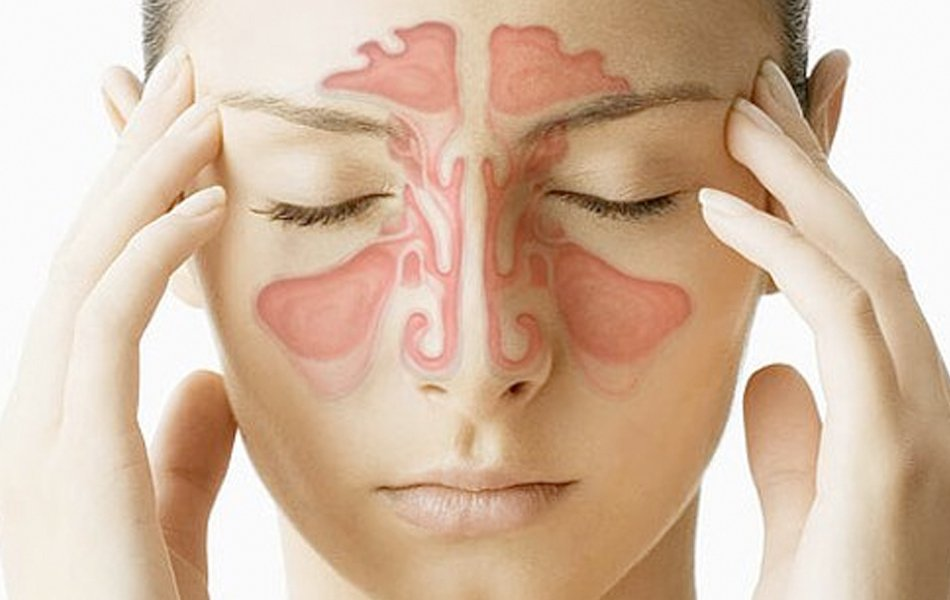 How Long Does a Sinus Infection Last?